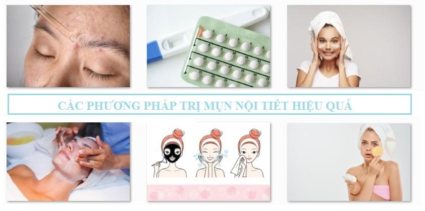 các phương pháp trị mụn nội tiết hiệu quả