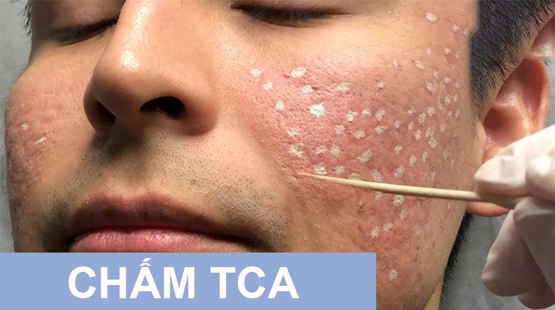 Trị sẹo bằng chấm TCA