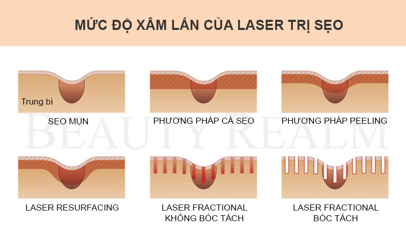 Trị sẹo bằng laser