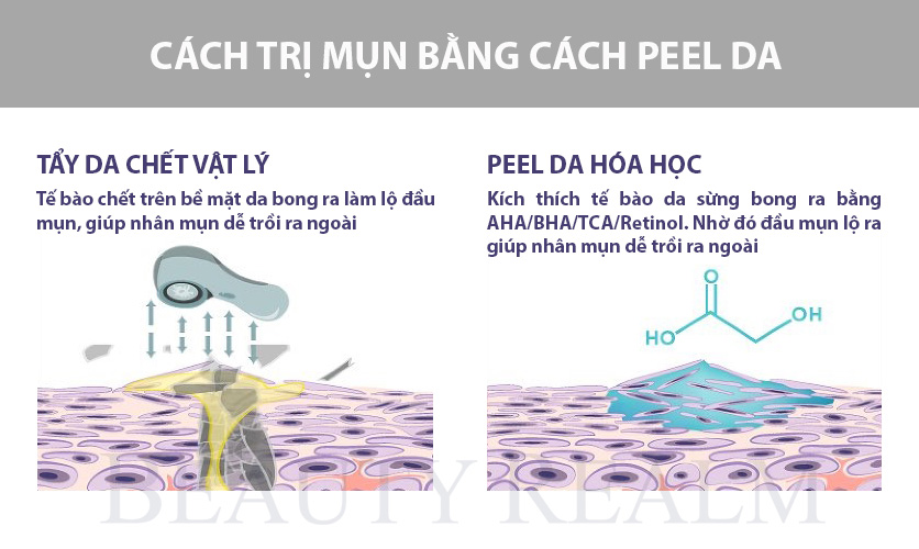 Cách trị mụn bằng peel da
