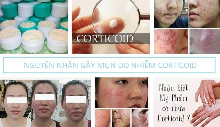 Nguyên nhân gây mụn do da nhiễm corticoid