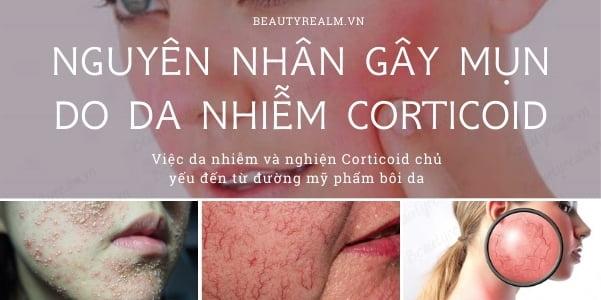 Nguyên nhân gây mụn do nhiễm corticoid