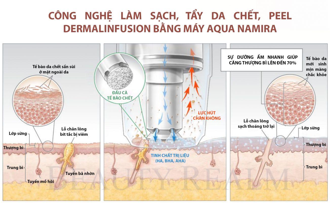 peel da có tốt không nhờ công nghệ Dermalinfusion