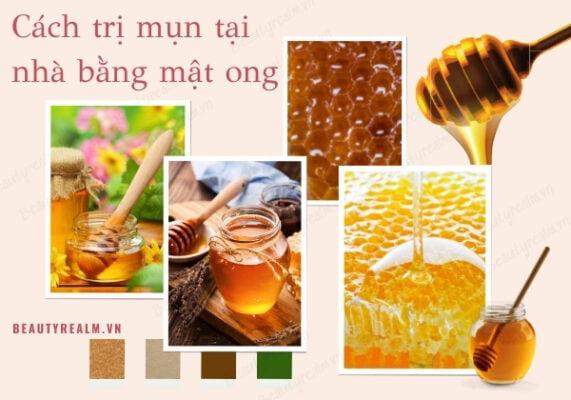 Cách trị mụn tại nhà bằng mật ong
