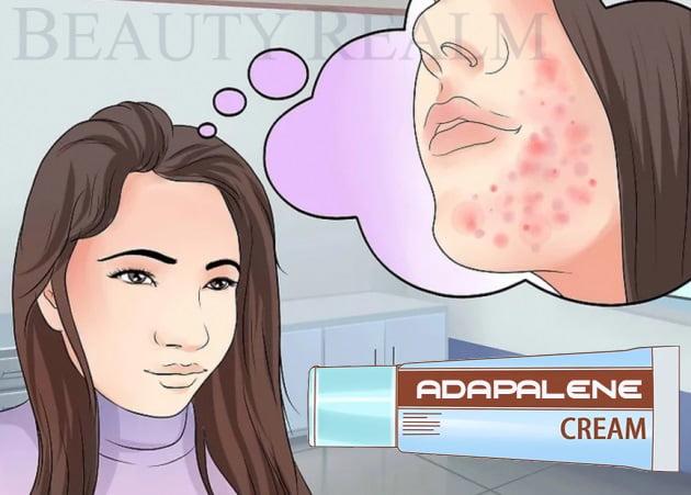 Thuốc trị mụn Adapalene