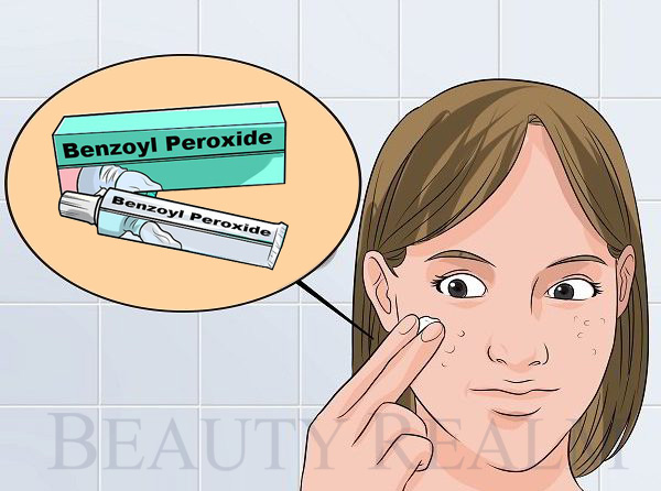 Thuốc trị mụn Benzoyl Peroxide