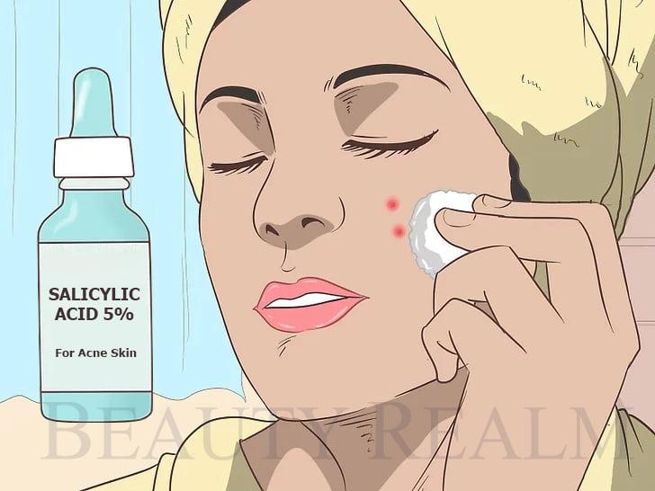 Thuốc trị mụn Salicylic Acid