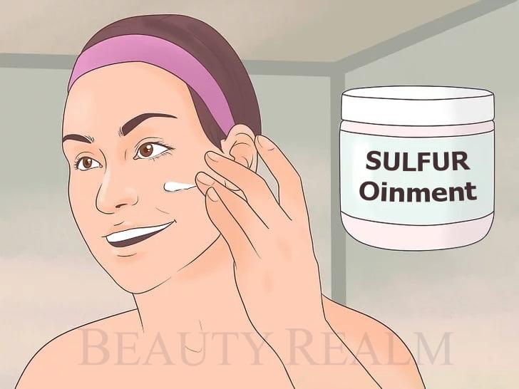Thuốc trị mụn Sulfur