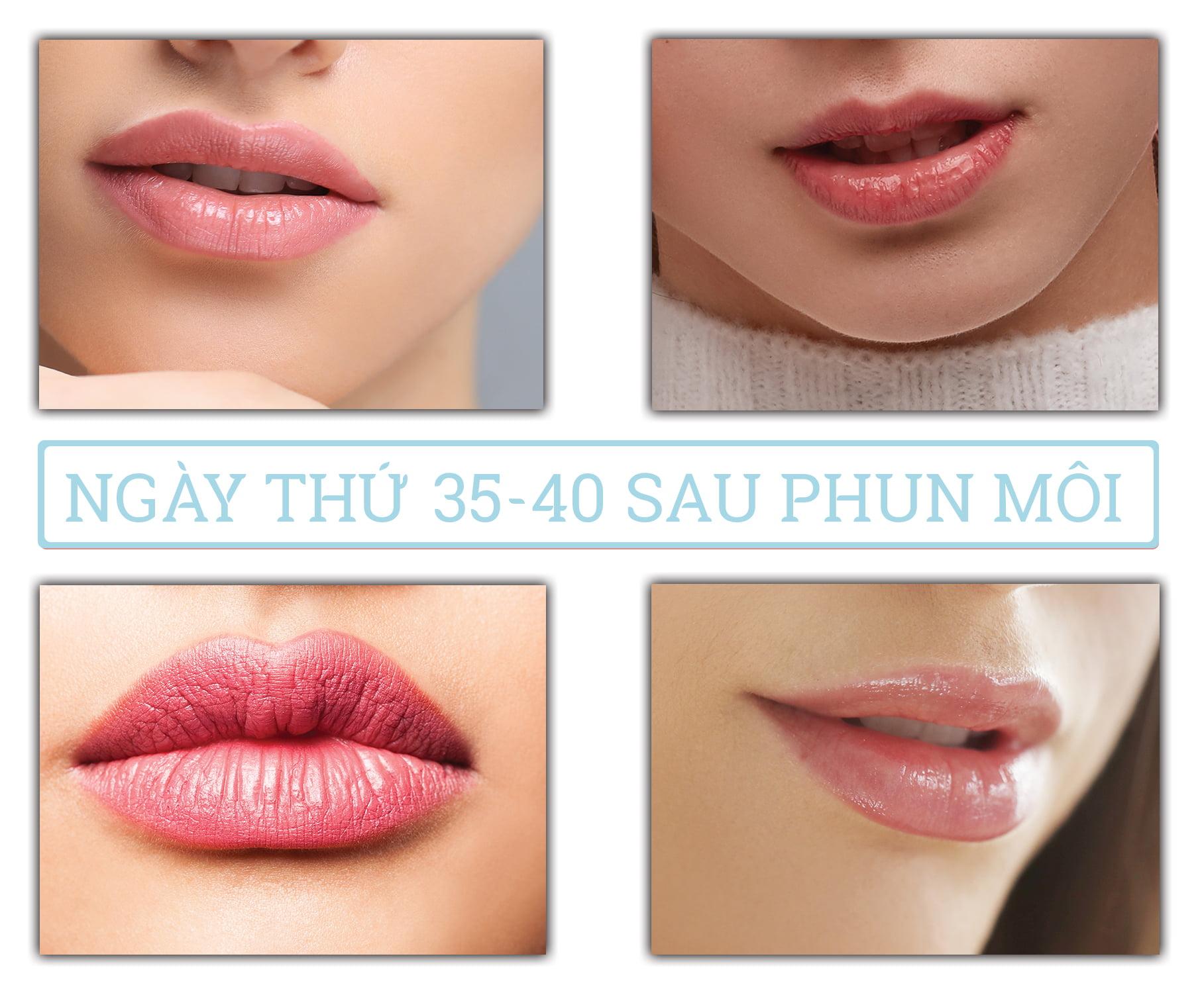 Quá trình phục hồi sau phun môi: Ngày 35-40