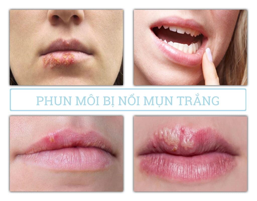 phun môi bị nổi mụn trắng