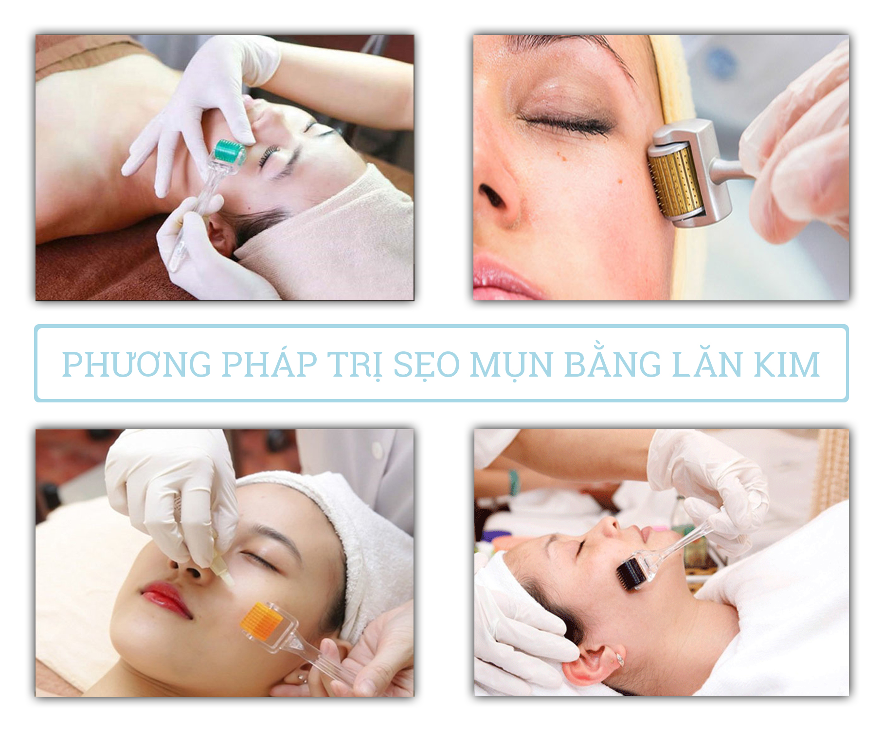 Phương pháp trị sẹo mụn bằng lăn kim