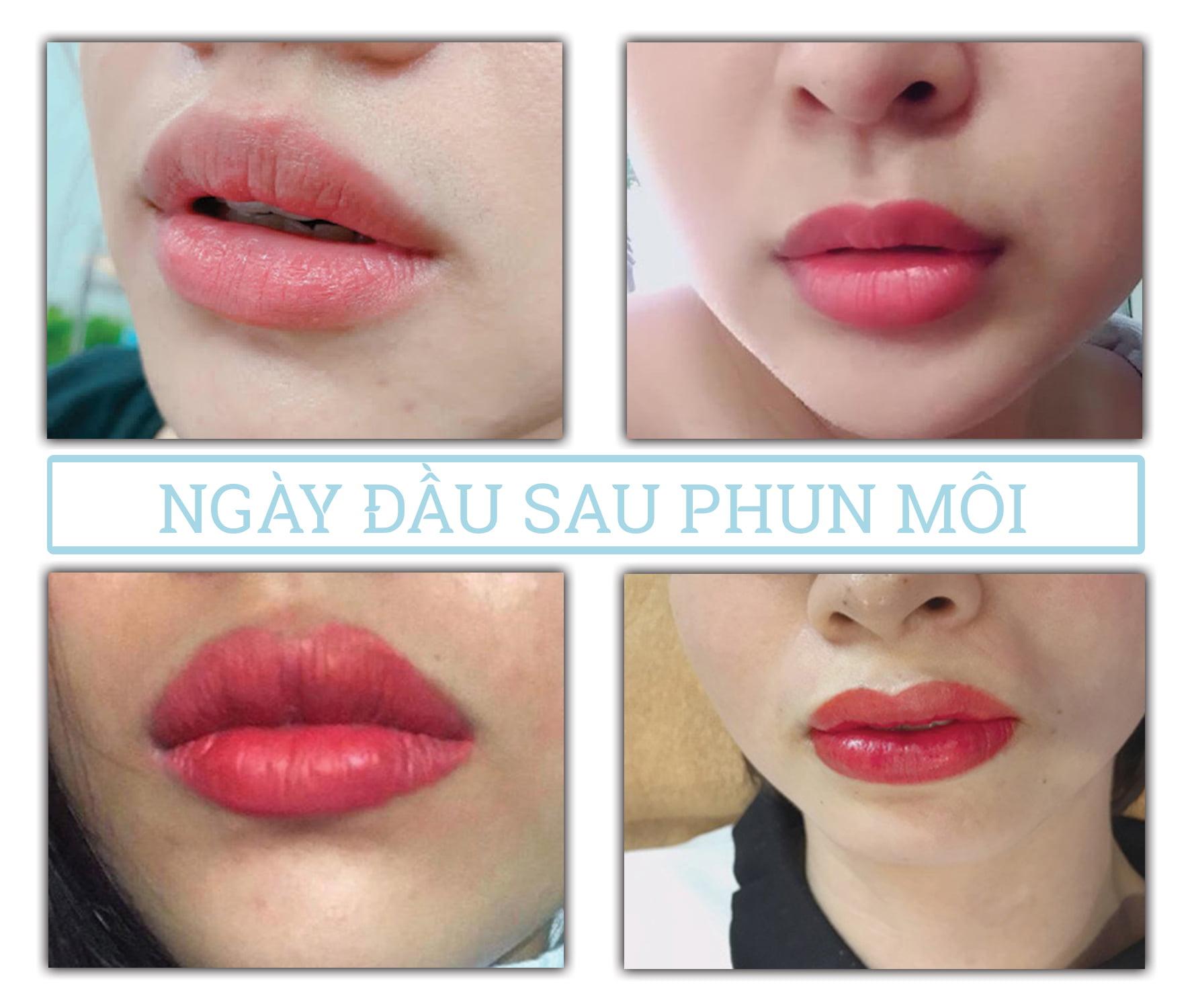 Quá trình phục hồi sau phun môi: Ngày 1
