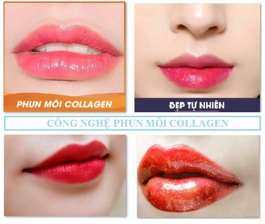 Công nghệ phun môi collagen