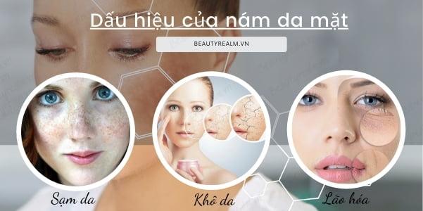 Dấu hiệu của nám da mặt