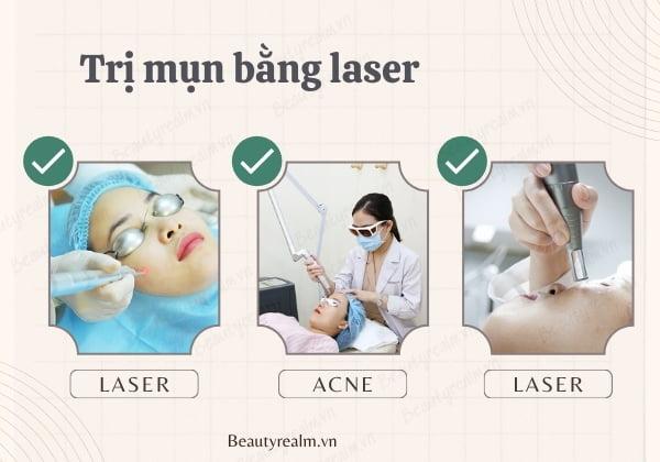 Cách trị mụn bằng laser